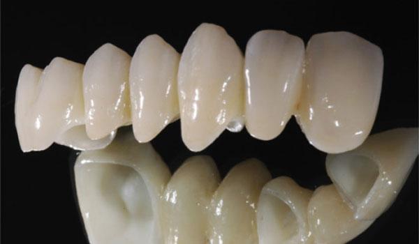 Răng toàn sứ Cercon và Zirconia có gì khác nhau