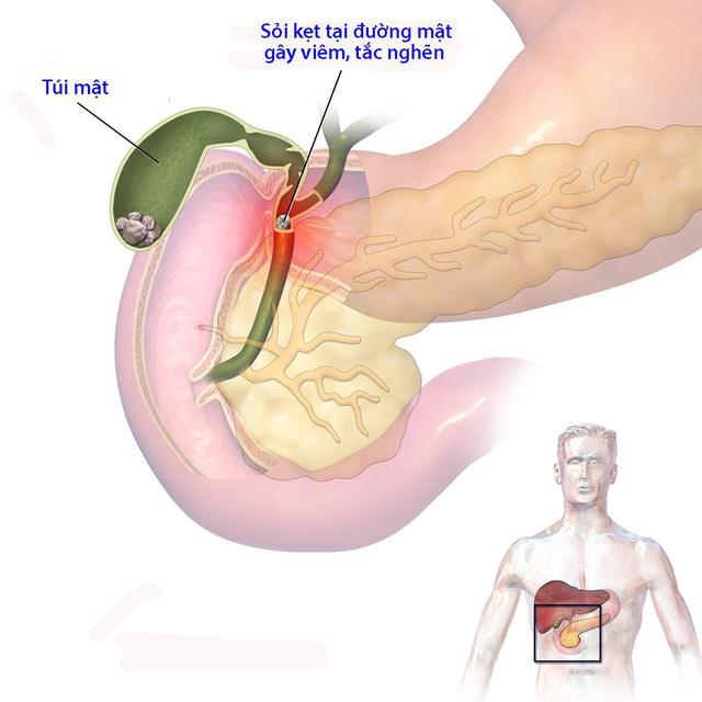 Những người bị sỏi mật có nguy cơ cao bị nhiễm trùng đường mật