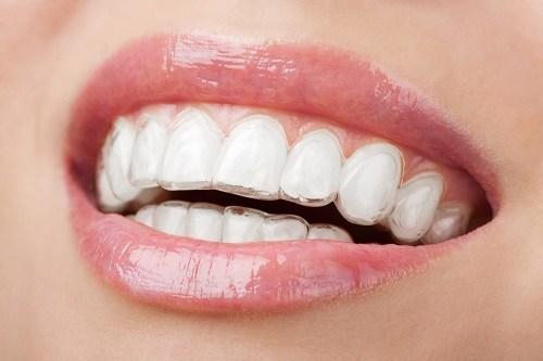 Niềng răng không mắc cài có hiệu quả thế nào?