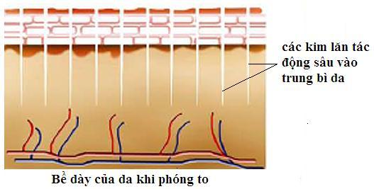 Lăn kim trị sẹo mụn là phương pháp làm đẹp an toàn với cơ chế tự nhiên