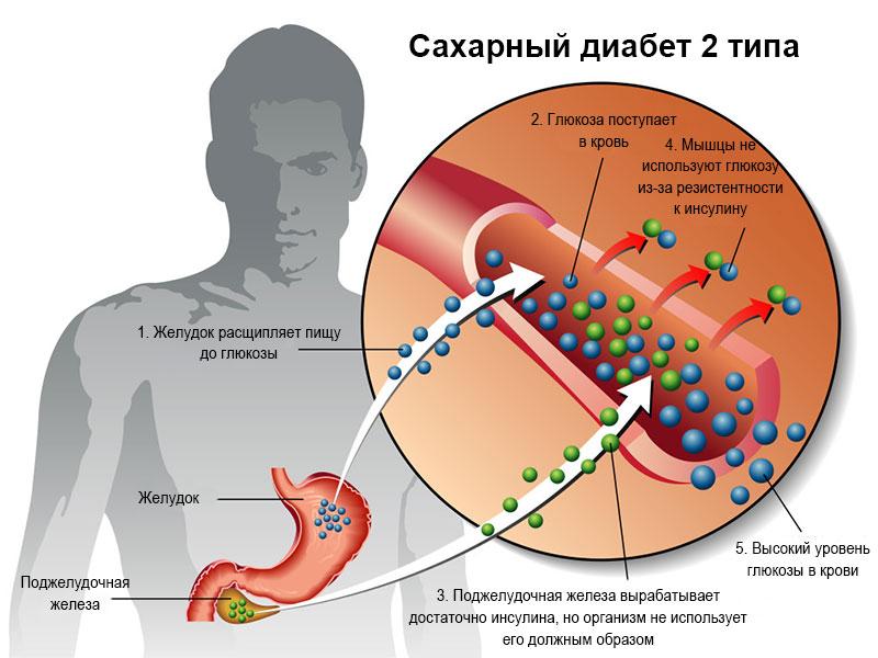 Что такое сахарный диабет 2 типа