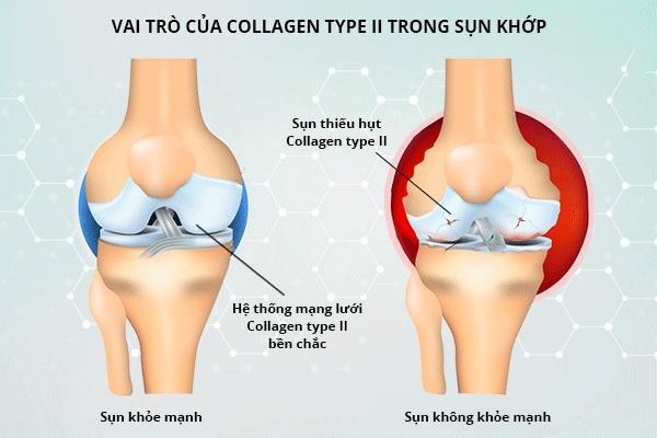 Collagen có vai trò quan trọng với xương khớp