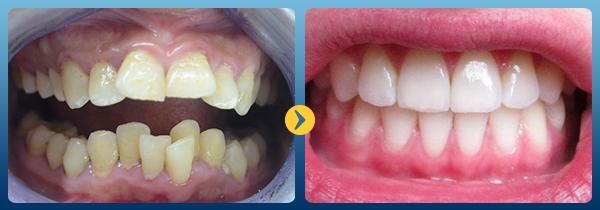 Niềng răng mắc cài tự buộc và thường thì loại nào tốt? 1