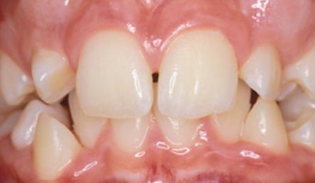 richmond-orthodontist-23