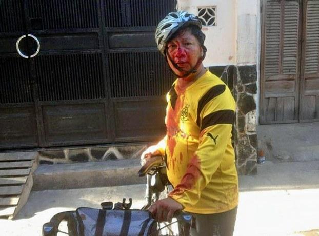 Dinh Quang Tuyen bi con an danh.jpeg