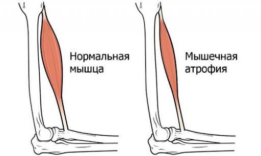 Типы спинальной мышечной атрофии