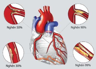 Cao huyết áp ảnh hưởng xấu tới tim
