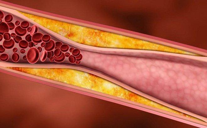 Thừa nhiều kẽm làm giảm HDL cholesterol, dễ gây xơ vữa động mạch