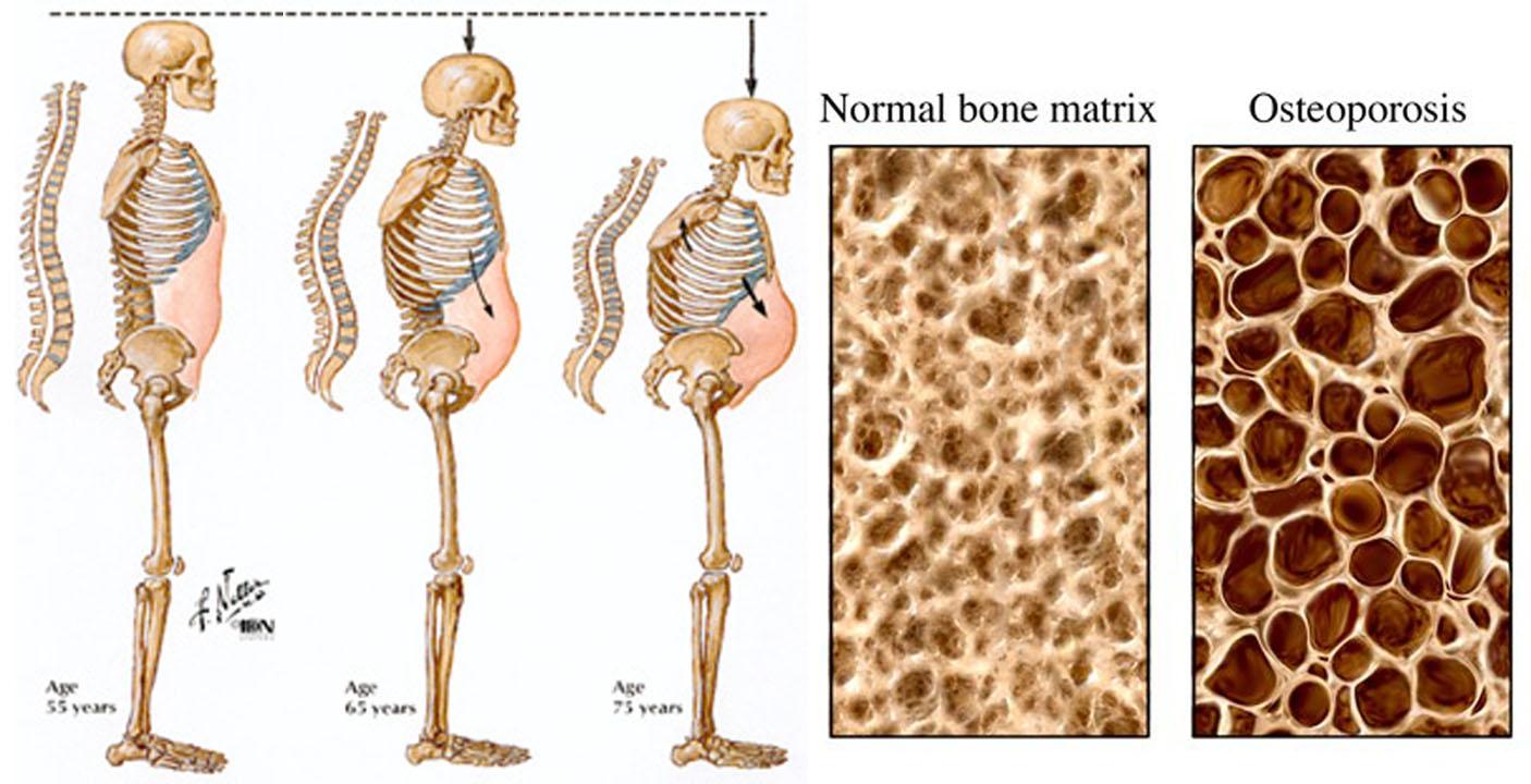 6-osteoporosis.jpg