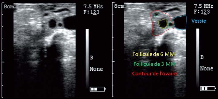 Image échographique d'un ovaire d'alpaga porteur de trois follicules