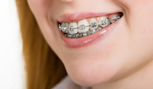 Các phương pháp niềng răng phổ biến tại nha khoa Bally