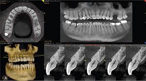 Imagini pentru cbct dental