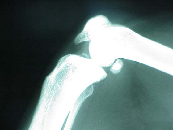"Radiograph of femoral-tibial joint. Note the large ""joint mouse"" (Synoviochondrometaplasia) in the joint space. Photomicrograph by R Duran-Struuck."