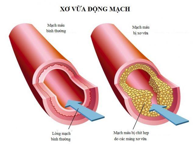 hình ảnh động mạch xơ vữa