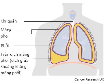 Các bác sĩ gọi sự tích tụ dịch này là tràn dịch màng phổi.
