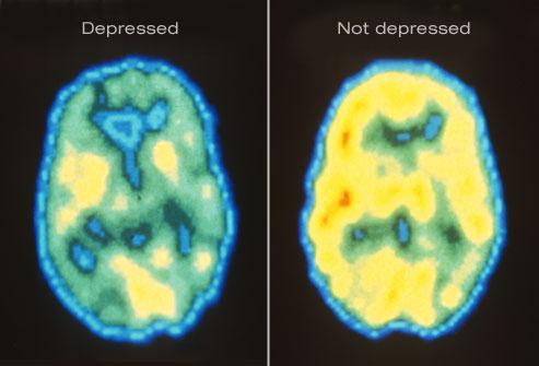 depression1.jpg