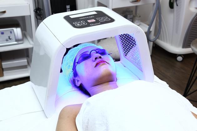chiếu ánh sáng sinh học để điều trị mụn nhanh hơn