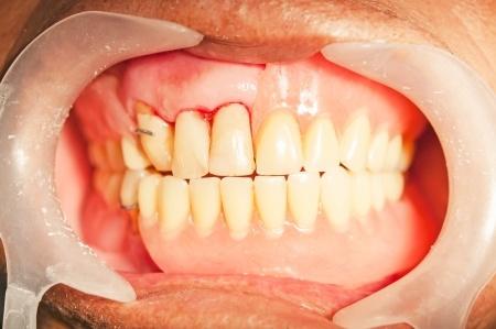 Tẩy trắng răng có gây hại hay gây đau gì không? 1