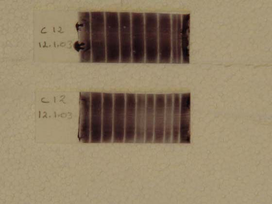 Smear of a sperm rich fraction, air dried and stained with eosin-nigrosin. This slide has areas of low and high concentration of sperm.