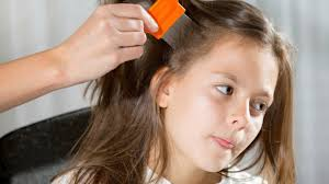 Image result for Give your hair to your parents before you have nit's