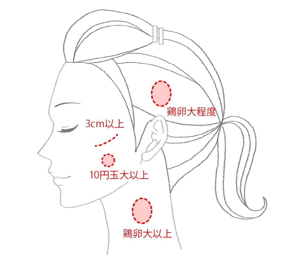 後遺障害12級外貌醜状説明図