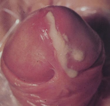 An image of chlamydia on male genitalia. White discharge