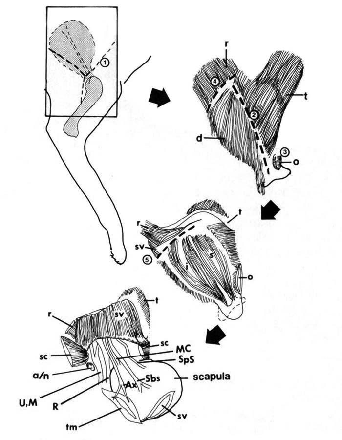 Exploration of the brachial plexus