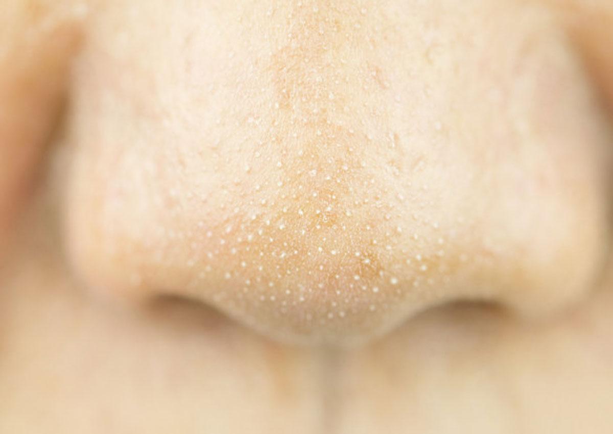 Nguyên nhân gây ra mụn cám và các sản phẩm skincare cho da mụn - Ảnh 2