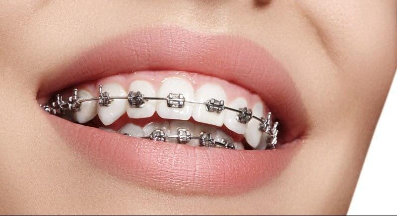 Aparelho dental em Altamira - Odontolove