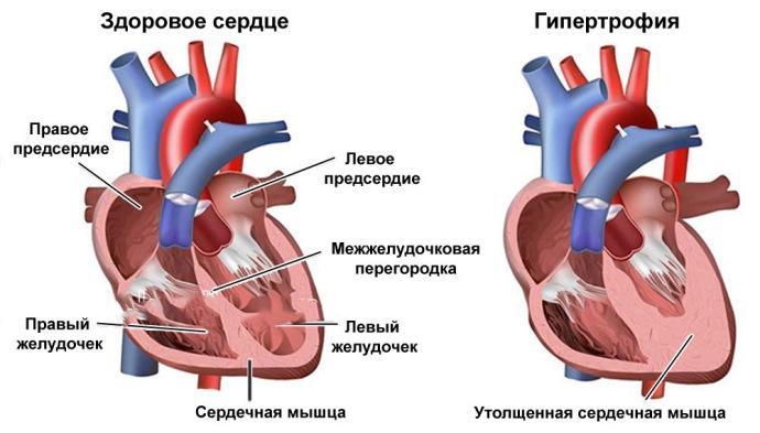 C:\Users\Julia\Desktop\Гипертрофия-миокарда-левого-желудочка-характеристика-болезни.jpg