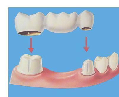 Resultado de imagen de puente fijo dental