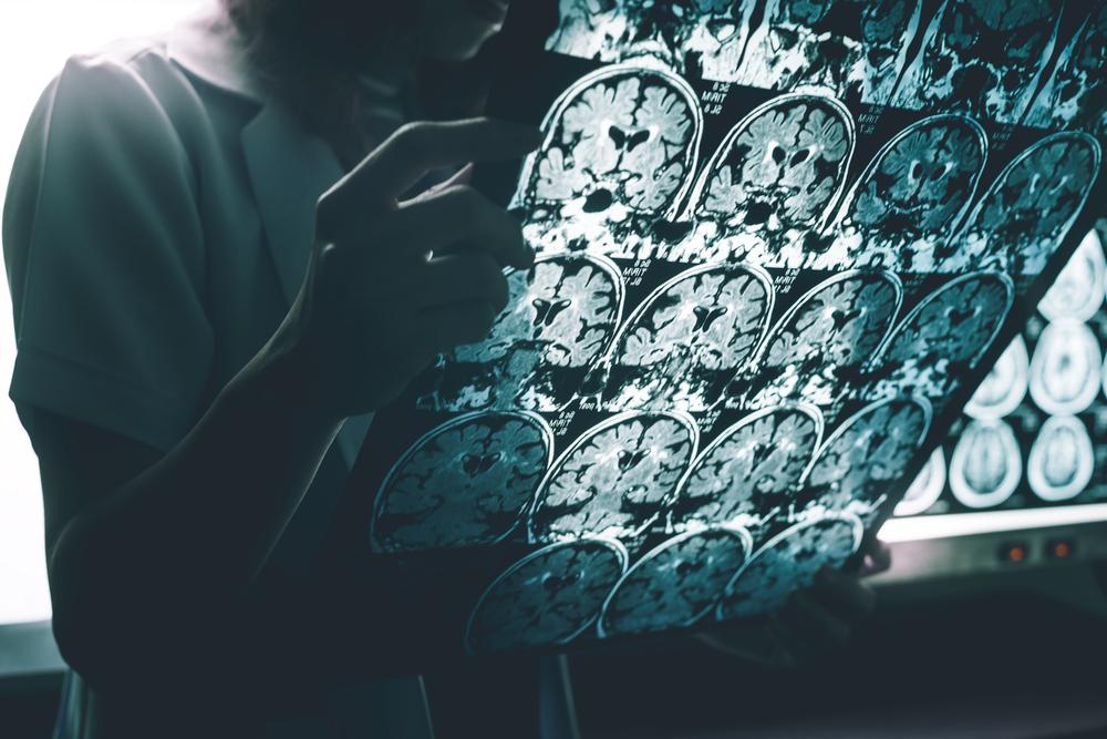 Presença de proteína amiloide no cérebro pode ser sinal de Alzheimer. (Fonte: Atthapon Raksthaput/Shutterstock)