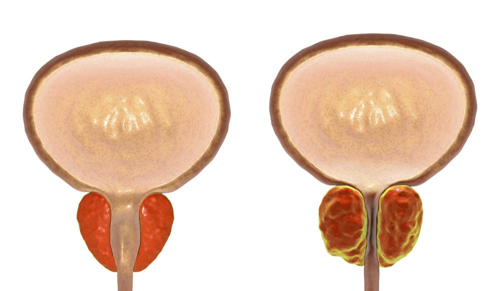 A hiperplasia das células da próstata pode ser verificada pelo exame de toque. (Fonte: Shutterstock)