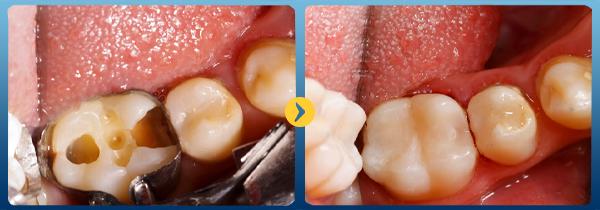 Quy trình điều trị nội nha lấy tủy răng tại nha khoa Bally 1