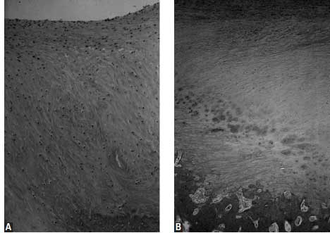 Photomicrographs of repair tissue in full-thickness articular cartilage defects in equine radial carpal bone