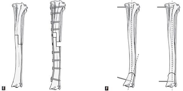 Corrective osteotomies