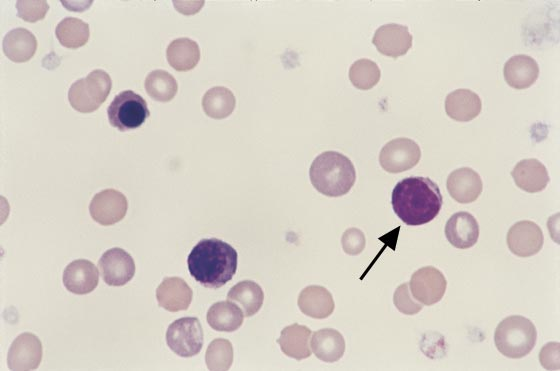 Feline blood. Two NRBCs are compared with a small lymphocyte (arrow). Platelet numbers are adequate and a few macrocytic polychromatophilic RBCs are present (100x).