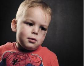 A small boy with a black eye