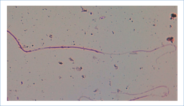 C. molossus nigrescens spermatozoa stained with 40X basic fuchsin, the absence of heads is noticeable.