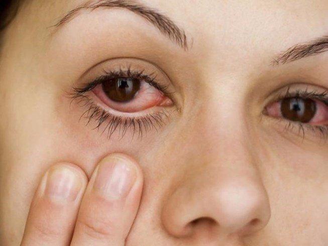 Bệnh võng mạc là bệnh gì? Có những loại nào thường gặp? | Vinmec