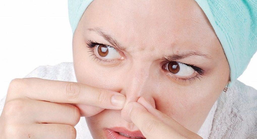 Trị mụn đầu đen hiệu quả với 7 Tips siêu đơn giản