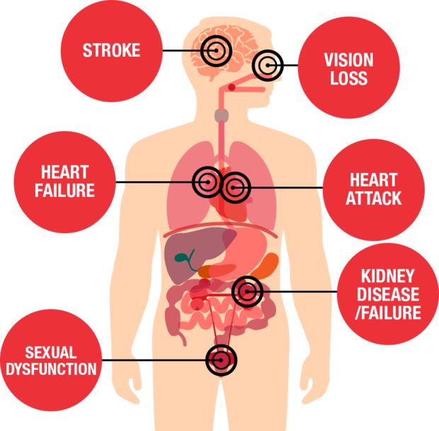 Diagram showing health threats from hypertension