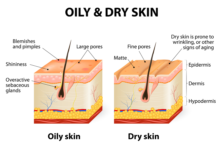OIly and Dry skin in creating the right skincare routine
