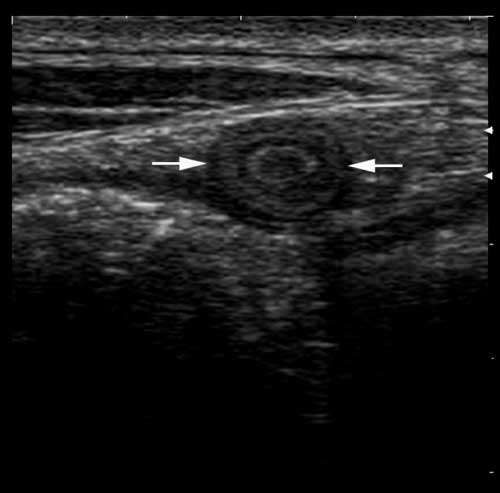 Abnormal umbilical vein with increased wall thickness and abnormal luminal contents in a foal with omphalophlebitis