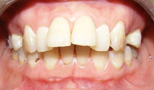 Giải pháp nắn chỉnh răng vẩu có hiệu quả khi bị hô hàm không?