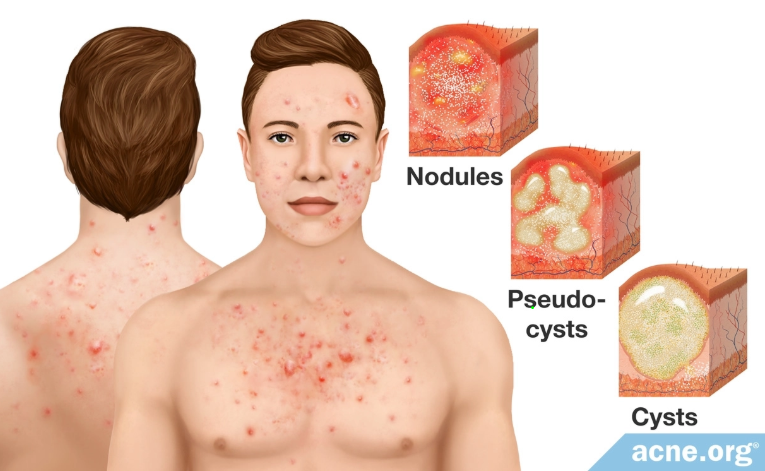 3 types of acne