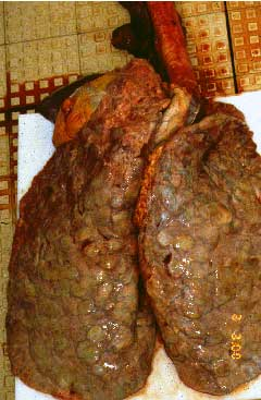 Fungal granuloma in the lungs of a 9 year old gelding.