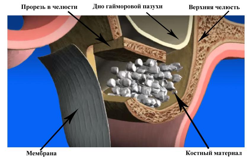 Пластика Кости 1.jpg