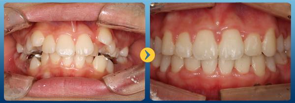 Niềng răng Invisalign có đau không phụ thuộc vào tiêu chí nào? 1