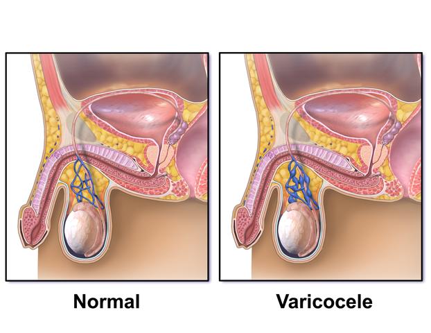 Diferença entre testículos normais e com varicocele